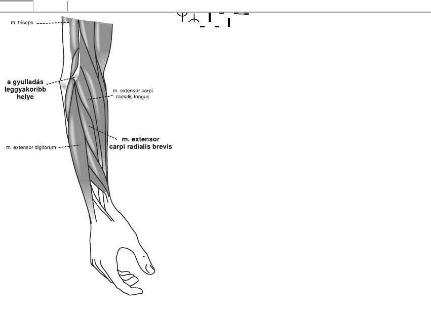 a vállízület ligamentumainak sérülése, hogyan kell kezelni)