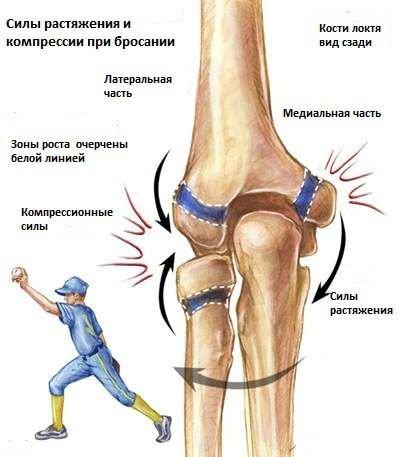 könyökízület ödéma sérülés után)