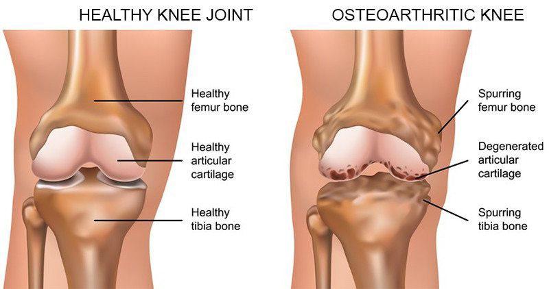 deformáló artrózis az 1. fokú kezelési prognózisban gyenge ízületi fájdalom