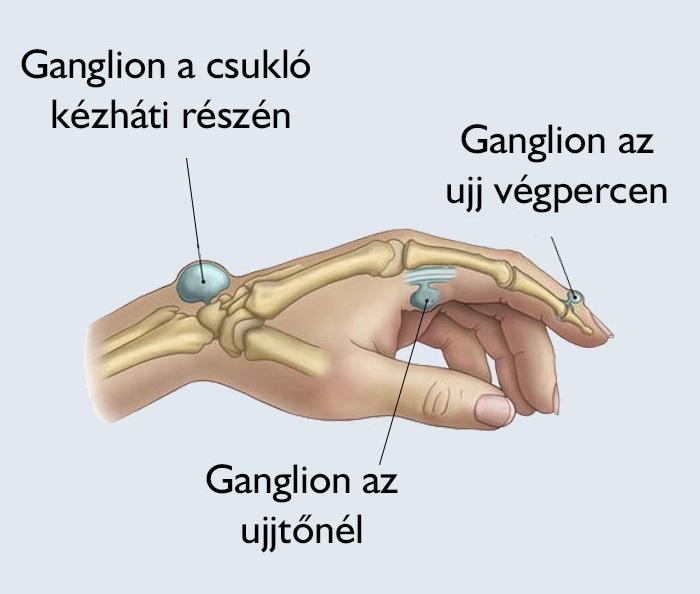 az ujj traumás ízületi gyulladása