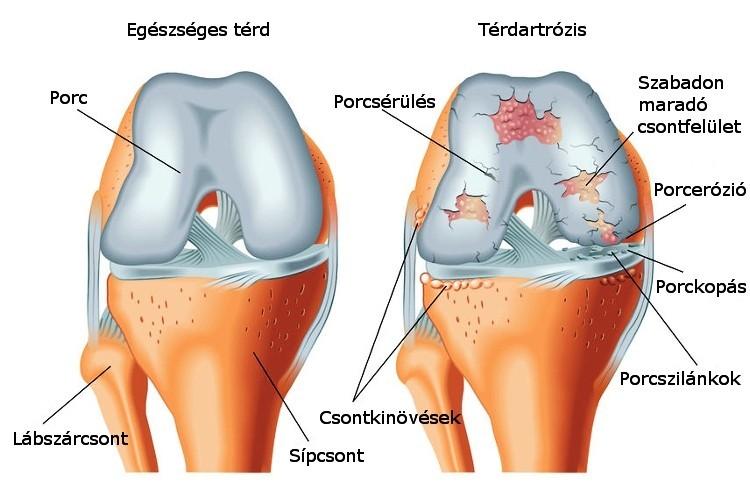 az artrózis rendszeres kezelése hírek az ízületi ízületi gyulladás kezelésében