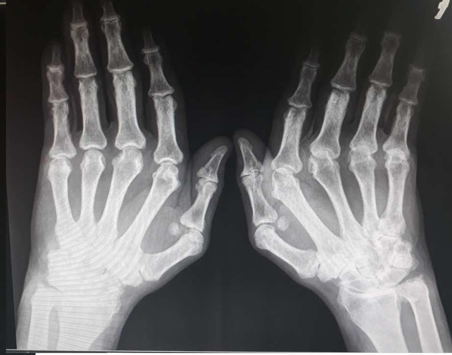 artritisz kéz áttekintés)