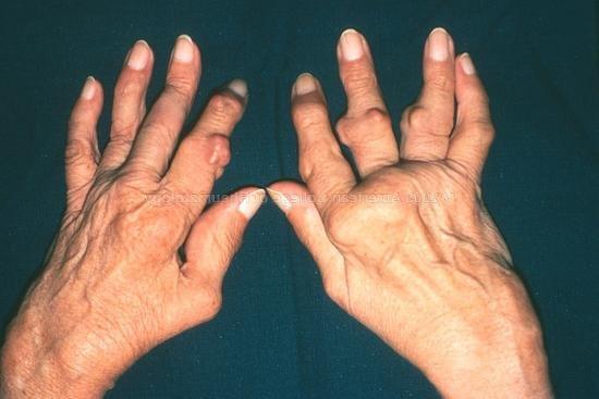 ízületi fájdalomcsillapító gyógyszerek onkológiában ízületi fájdalom mozgás közben