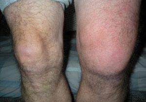 térdízületi kezelés zavaros szinovitisa)