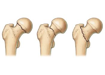 fájdalom a csípőízület nagyobb trochanterében)