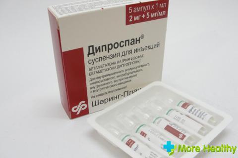 gyógyszerek a csípőízület blokádjához