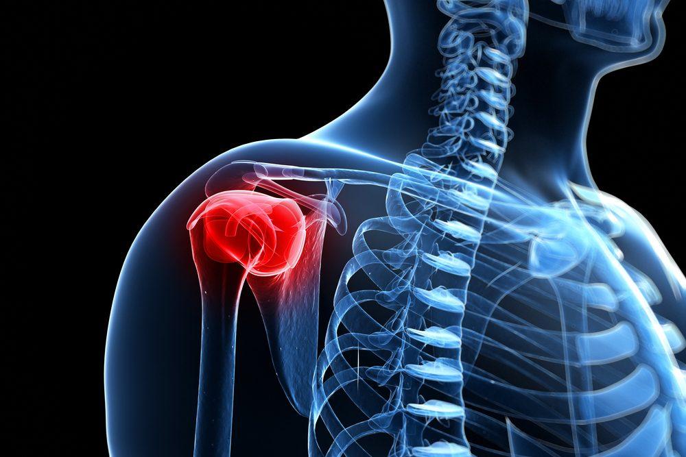 könyök-váll fájdalom segít az orvosi ízületi betegségben