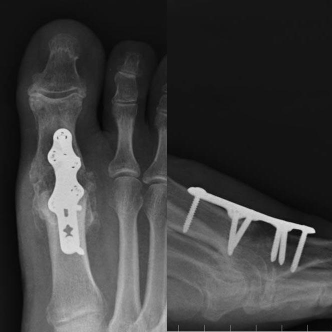 Artrózis kezelése sharpei-ben