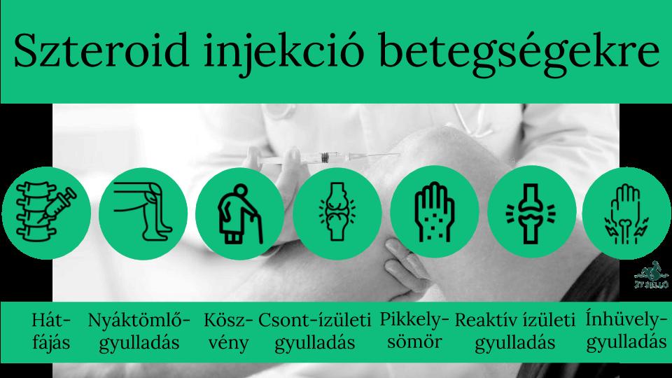 Ízületi injekciókról általában | seovizsgalat.huán István ortopéd sebész praxisa