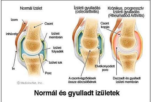 térd ízületi gyulladás tünetei