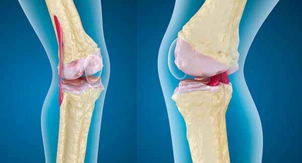 térdízületi fájdalom a sérülés után