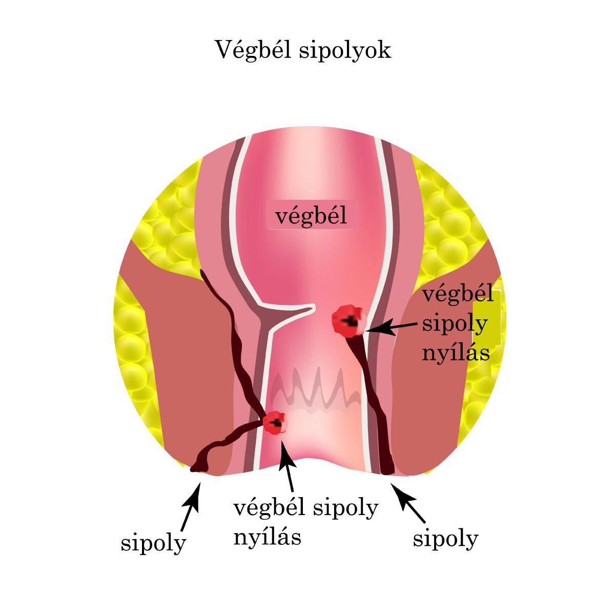 Ízületi kezelés allflutop-nal